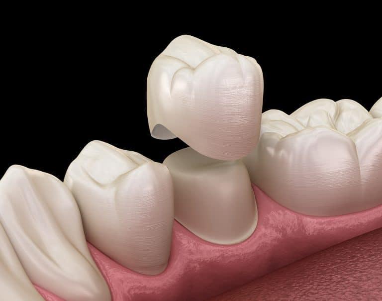 dental crowns quakers hill