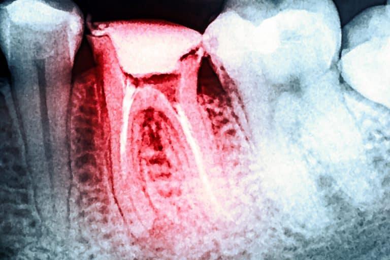 dental emergency quakers hill