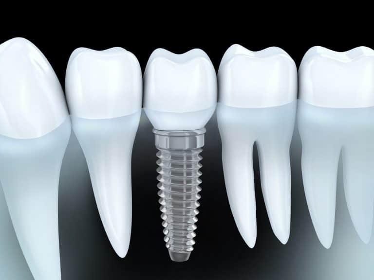 dental implants quakers hill