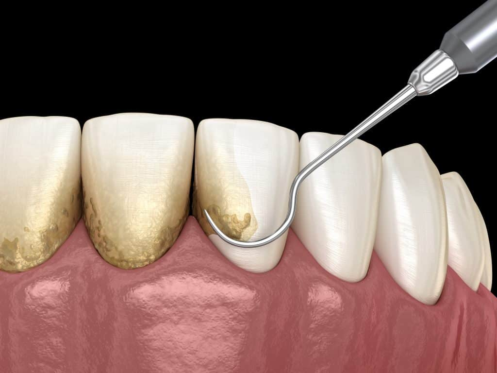 Removing plaque off teeth at dental check up