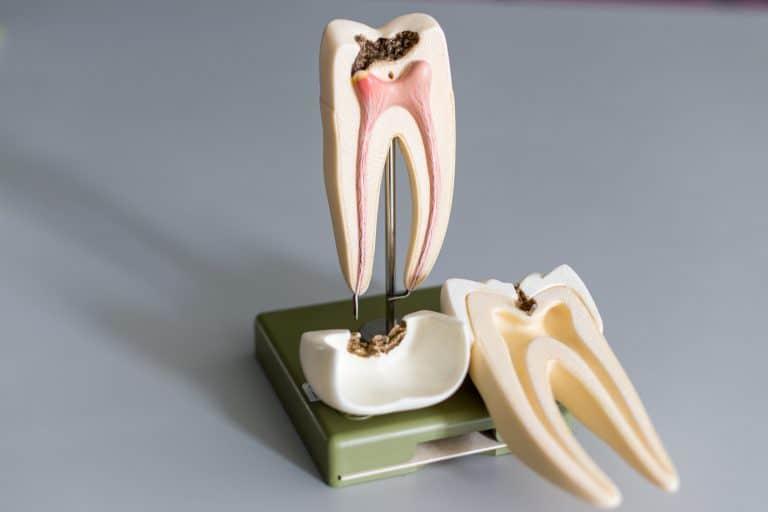 root canal treatment quakers hill endodontics