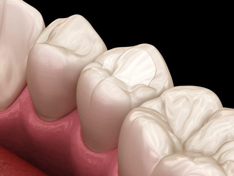 tooth fillings quakers hill