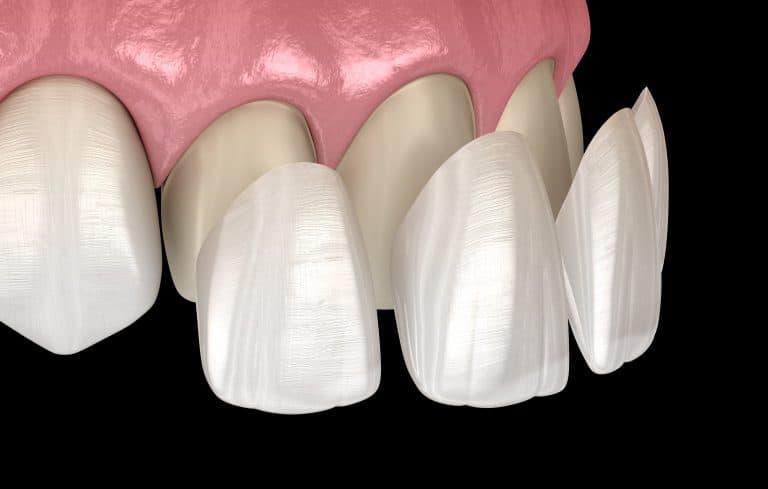 tooth veneer quakers hills
