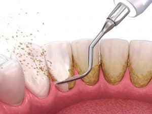 professional-cleaning-to-remove-dental-plaque