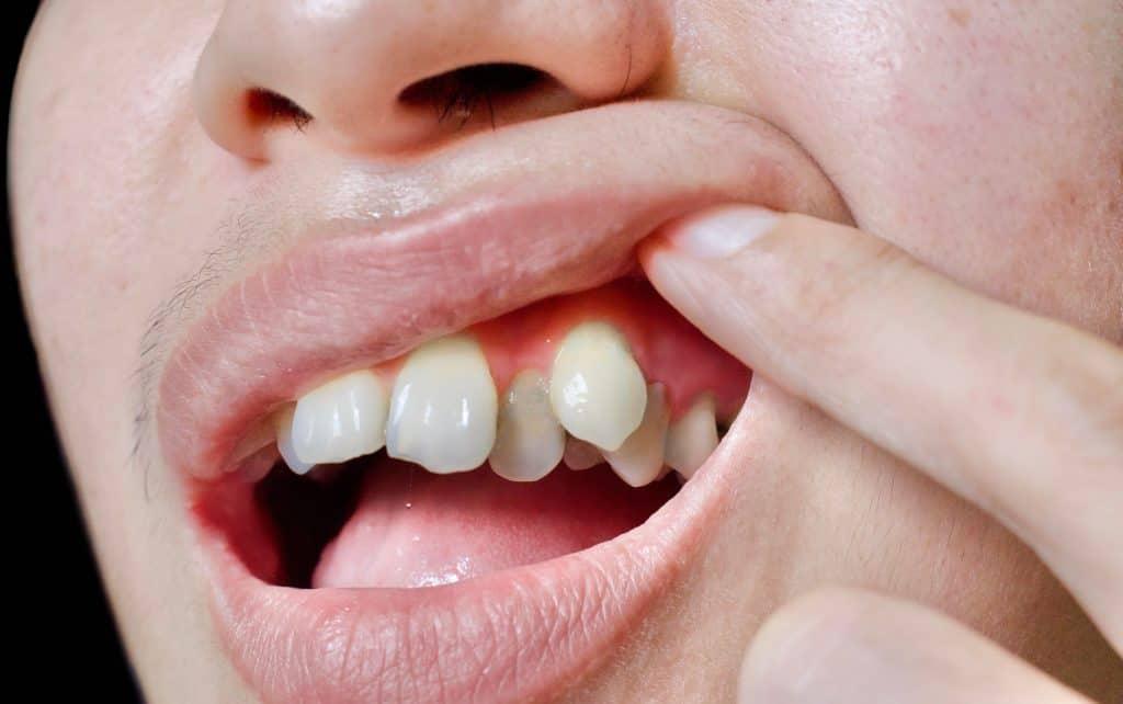 an image of misaligned teeth